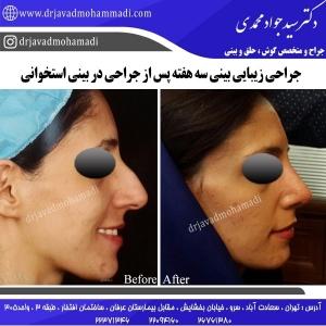 جراحی بینی 103