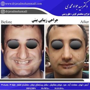 جراحی-بینی-94