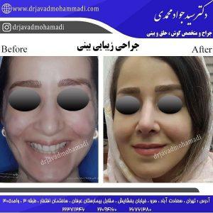 جراح بینی در سعادت آباد