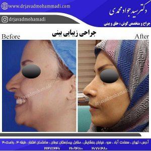 جراح زیبایی بینی در سعادت آباد