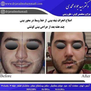 عمل جراحی انحراف تیغه بینی