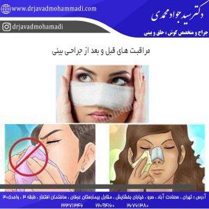 مراقبت های قبل و بعد از جراحی بینی